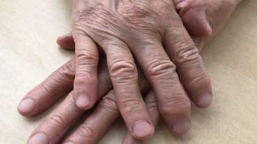 Artrosi: Cosa funziona davvero? Linee Guida 2020