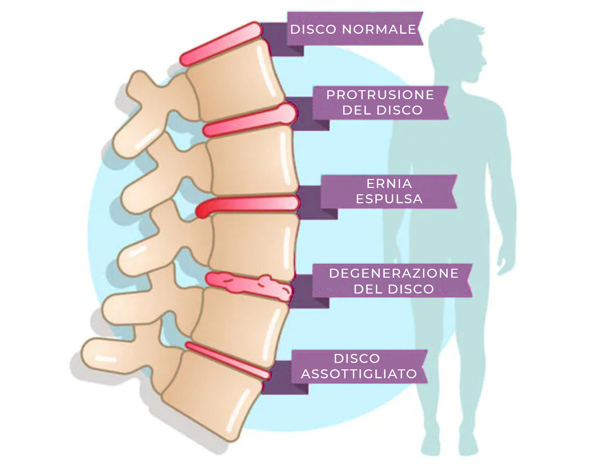 degenerazione disco vertebrale